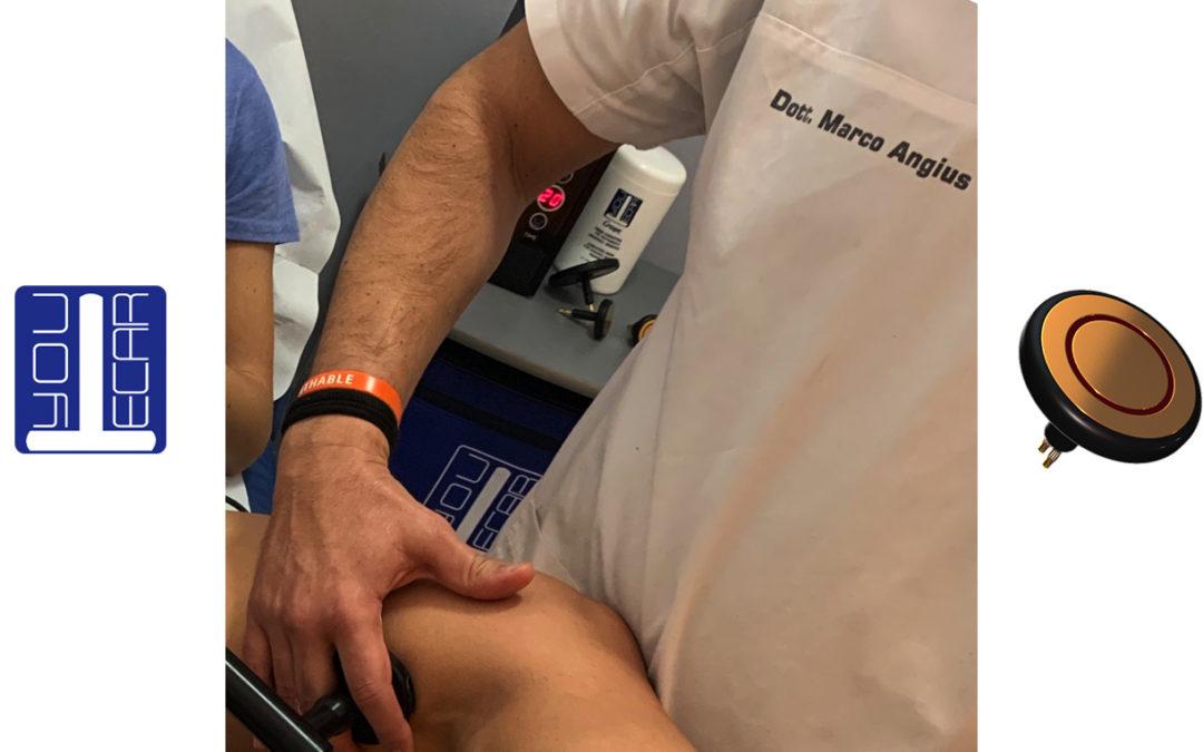 Lesione del legamento collaterale mediale e Tecarterapia YouTecar